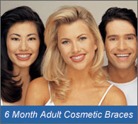 Adult Cosmetic Braces